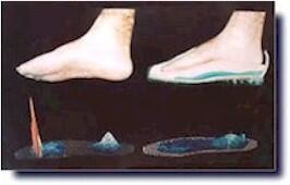 Plantar pressure map with and without an orthodontic image.