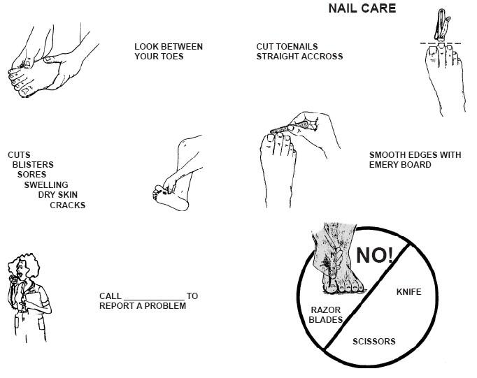 Nail care: Cut toenails straight across. Smooth the edges with an Emery board. Do Not use razor blades, scissors or knives. Check between your toes for cuts, blisters, sores, swelling, dry skin and cracks. Call your clinic to report a problem.
